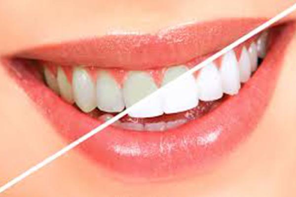 Sinsational-Smile-teeth-whitening